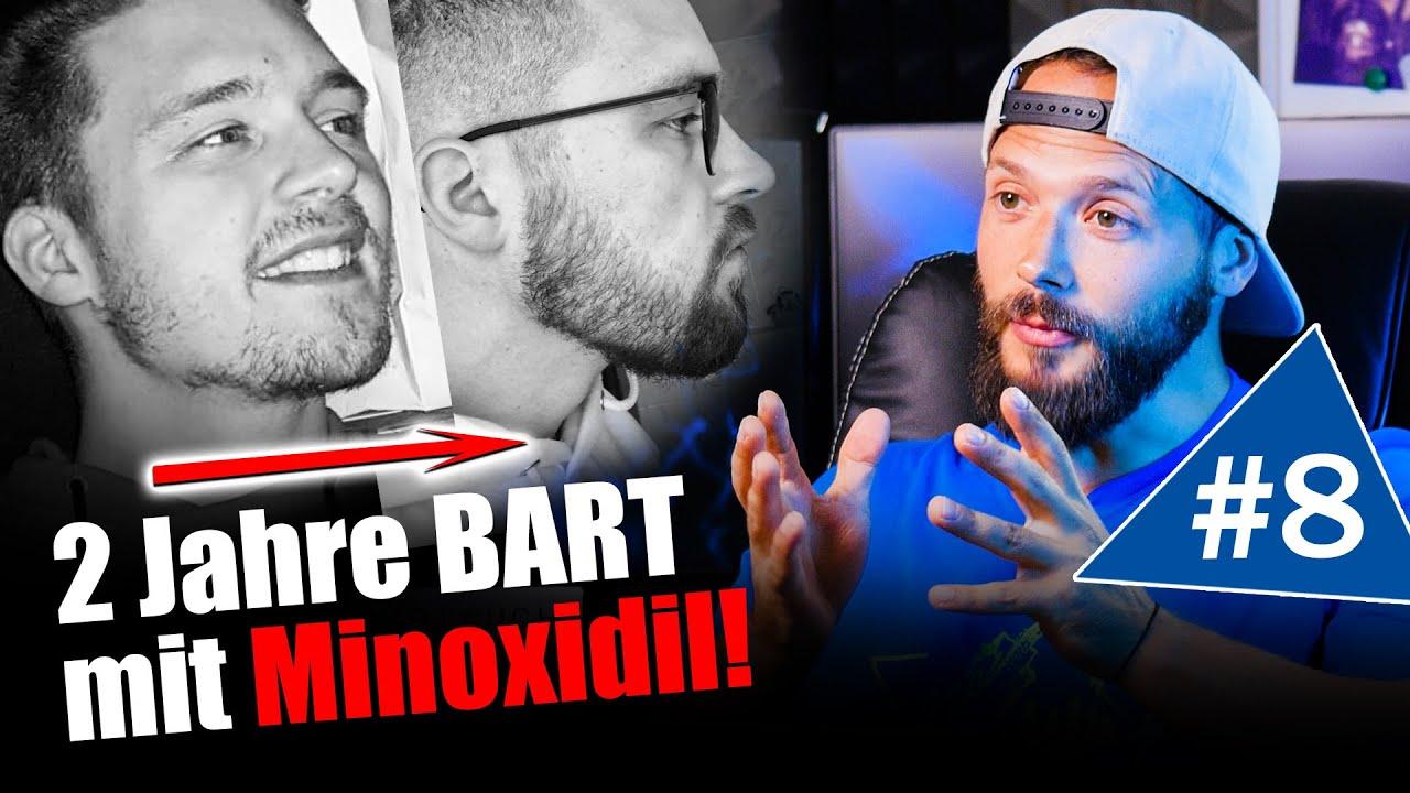 Bartwuchs Erfolge mit Minoxidil | Bartwuchs Info Check Folge8