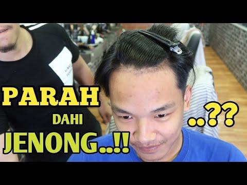 Waduh Parah Betol Ni Jidat Lebar Cocok Nya Model Apa Gaya Rambut Jidat Jenong Drop Fade Barber Youtube