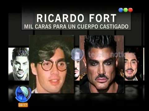 La transformación de Ricardo Fort - Telefe Noticias