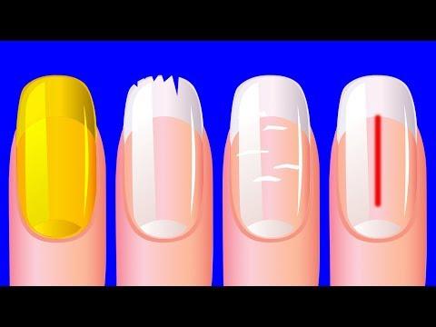 Цвет ногтей на руках белый