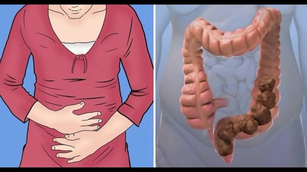 """Image result for YOU ARE NOT FAT – YOU HAVE """"POO"""" STUCK IN YOUR BODY! HERE IS HOW TO ELIMINATE IT INSTANTLY"""