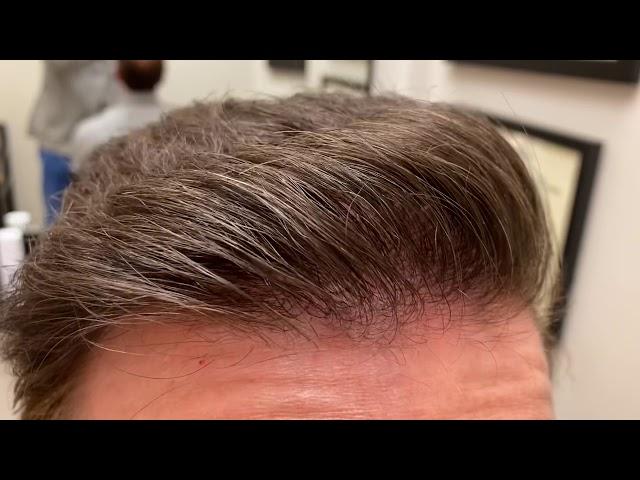 Dallas Hair Transplant CloseUp/Testimonial/Photos