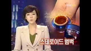 MBC 9시 뉴스(스테로이드 크림의 위험)