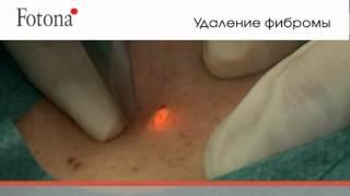 FT лазерное удаление новообразований