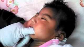 Génesis Gonza  en su Terapia Orofacial HMA