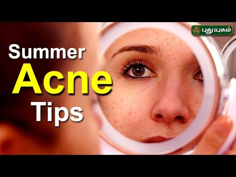 Tips to avoid summer Acne அழகு கலை For Beauty Morning Cafe 27-04-2017