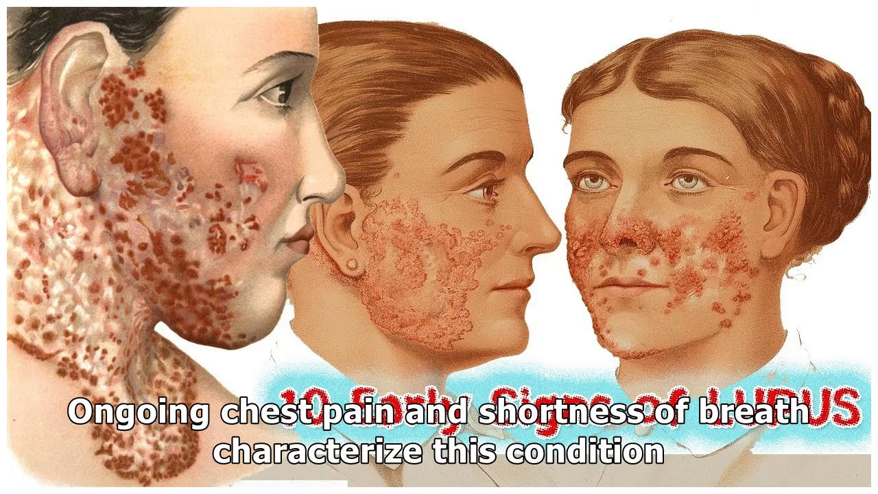10 Early Signs of Lupus