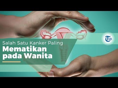 Banyak perempuan di Indonesia yang meninggal karena kanker serviks. Kanker yang satu ini bisa diobat.