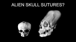 Science VS the Aliens of Peru! Episode 4: Skull sutures and parietal foramen