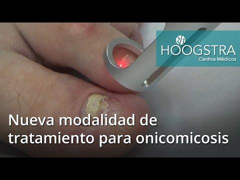 Nueva modalidad de tratamiento para la onicomicosis (16104)