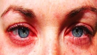 25 Of The Most Common Allergies