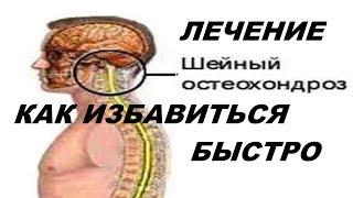 Bepic Новый Отзыв об ELEV8 Прошёл Шейный Остеохондроз Головокружение Хроническая Усталость