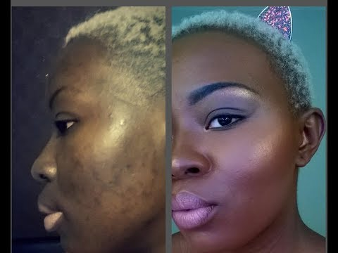 full coverage foundation routine for hyperpigmentation and acne scars on dark skin
