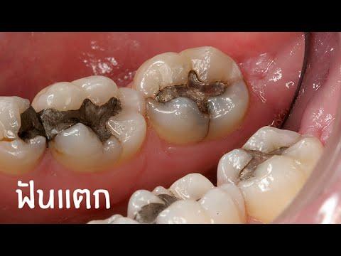 ฟันหัก ฟันแตก ฟันบิ่น ฟันร้าว