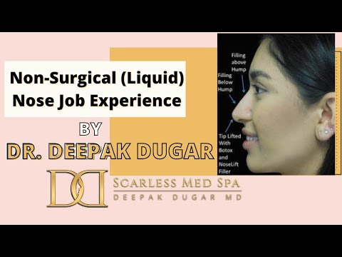 Non-Surgical (Liquid) Nose Job Experience with Dr. Dugar, Beverly Hills