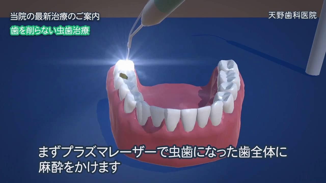 で 虫歯 治す 自力
