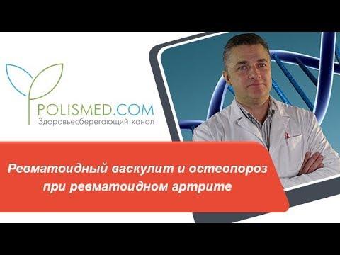 Ревматоидный васкулит и остеопороз при ревматоидном артрите