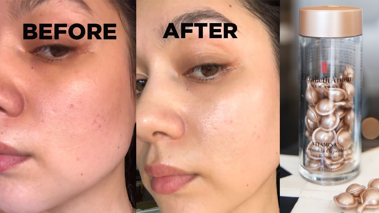 Elizabeth Arden retinol capsules before and after