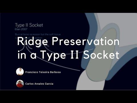 Socket Preservation In A Type Ii Socket Elian Classification Youtube