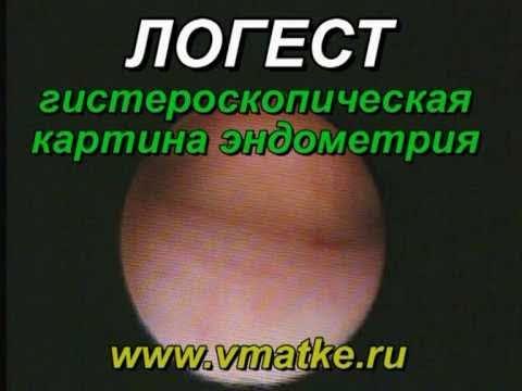 Логест - купить в интернет-аптеке в Москве, инструкция по