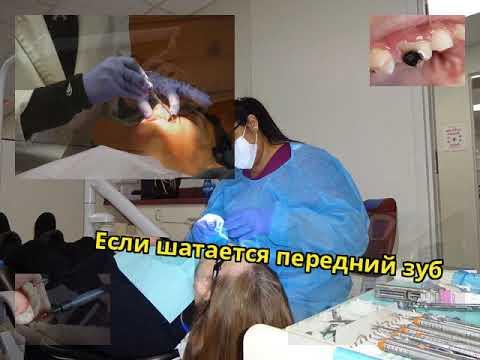 Передний зуб болит и шатается