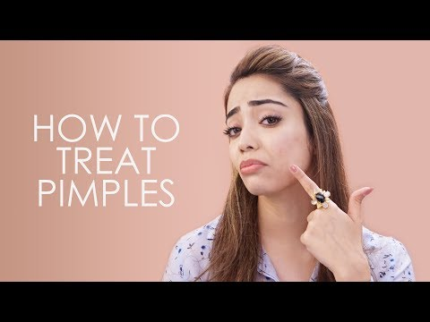 How to Treat Pimples and Pimple Marks | Easy Pimple Remedies | Be Beautiful