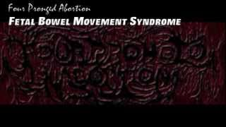 Four Pronged Abortion - Fetal Bowel Movement Syndrome