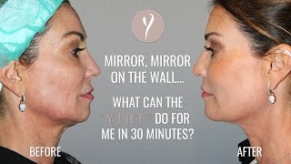 Mirror, Mirror On The Wall... | Y LIFT – Instant, Non Surgical Facelift