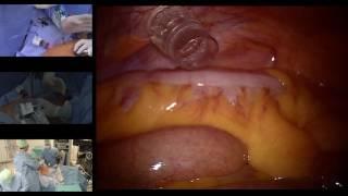 Prostatectomie Totale Robot LIVE Nicolas DOUMERC