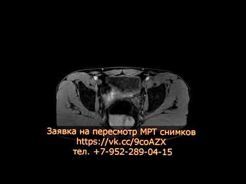 Хронический простатит с градацией 2 по шкале PiRADSv2 на заключении МРТ органов малого таза