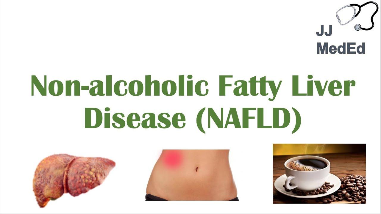 Download Non-Alcoholic Fatty Liver Disease, Risk Factors, Symptoms (ex. Fatigue), Treatment (ex. Coffee)