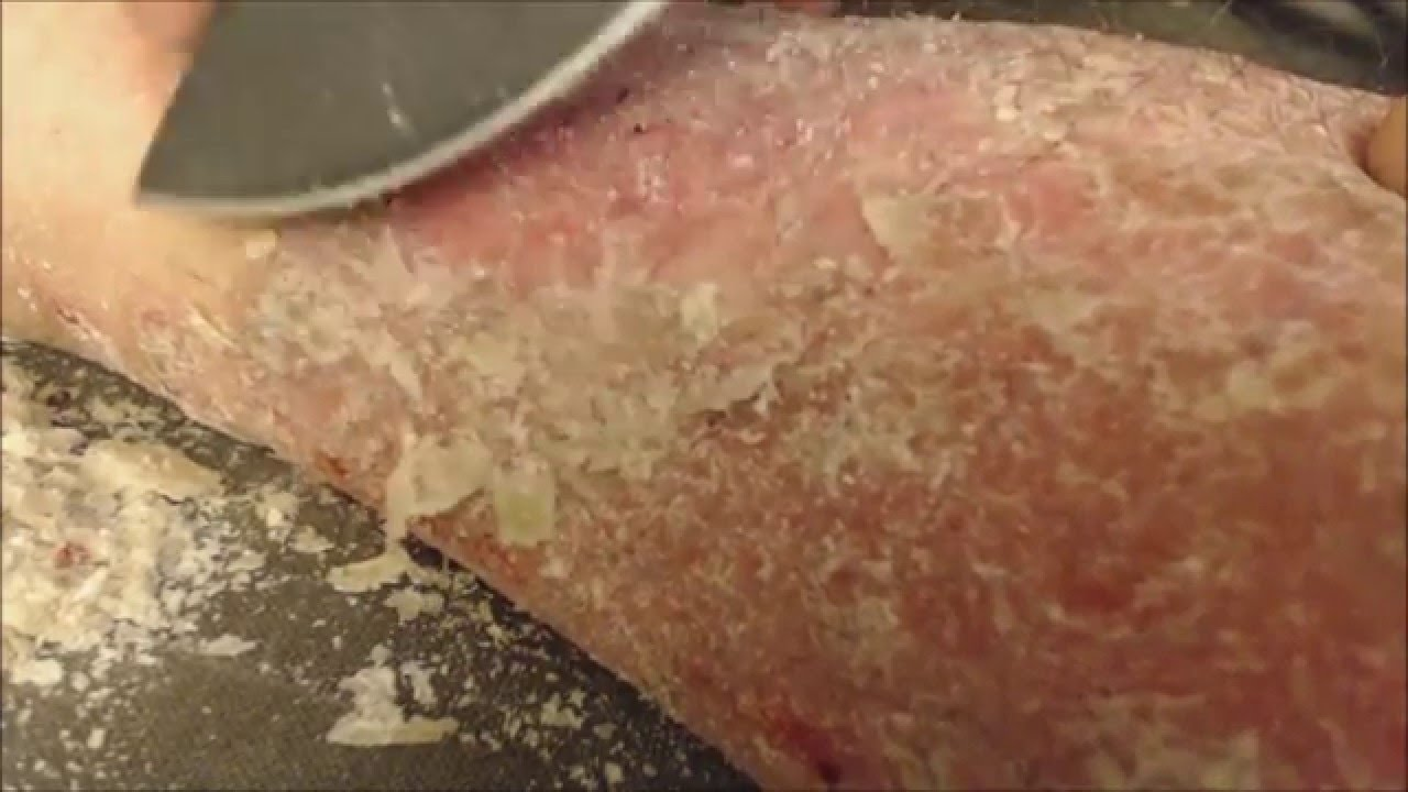 Scalp Psoriasis | Embarrassing | Health | Channel4.com/bodies