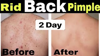 How to Remove Back Acne and Pimples | Hindi | Get Rid of Back & Body Acne at home in Just 2 Days