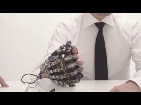 Hand of Hope - robotic arm after stroke rehabilitation exercise