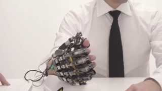 Gambar cover Hand of Hope - robotic arm after stroke rehabilitation exercise