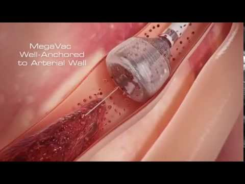 Megavac Mts Animation Mechanical Thrombectomy System