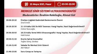 23 Mayıs 2021 Merkezi Sinir Sistemi Ultrasonografisi