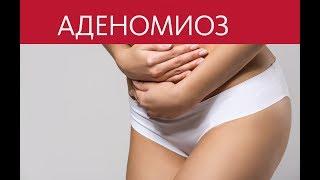 видео Аденомиоз - причины, признаки, симптомы и лечение