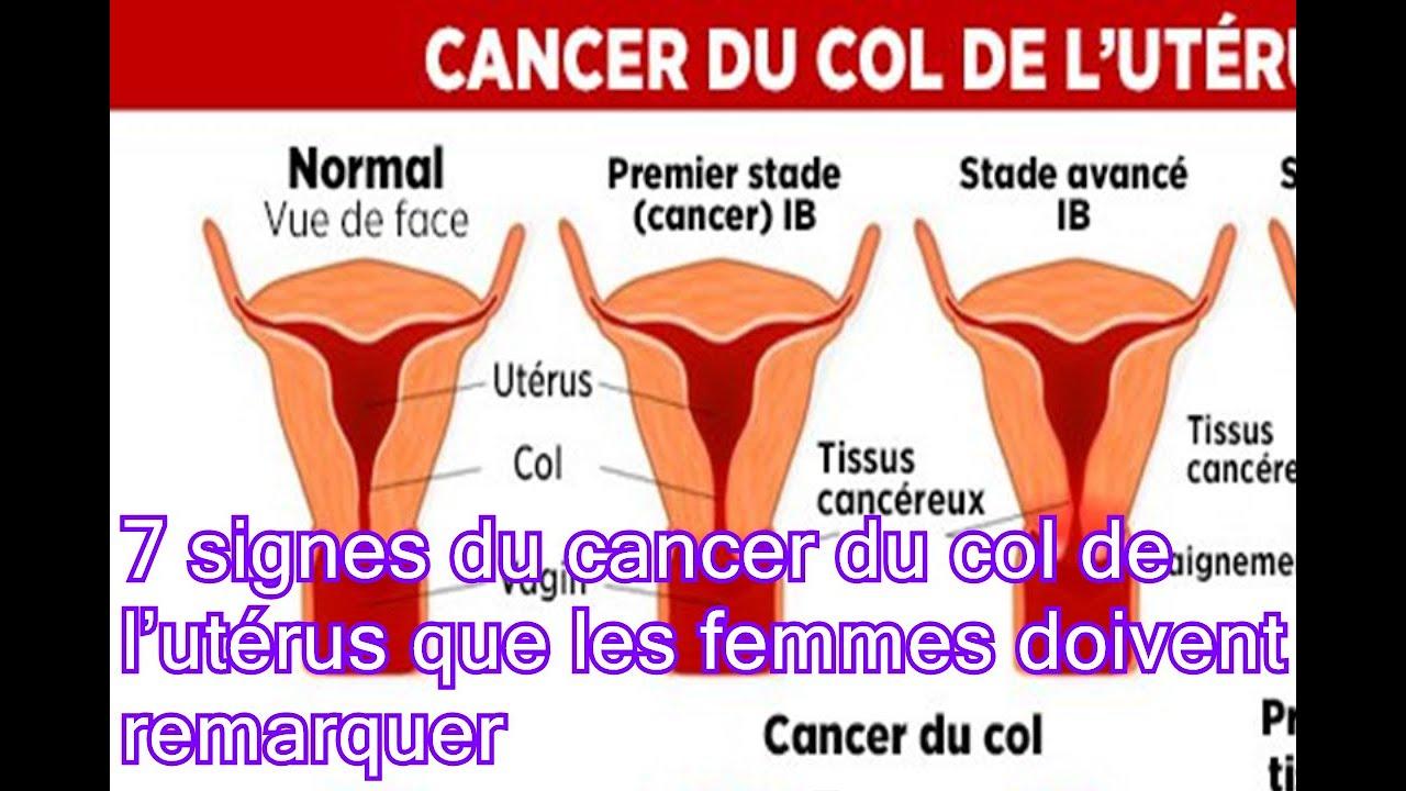 7 signes du cancer du col de l ut rus que les femmes doivent remarquer youtube. Black Bedroom Furniture Sets. Home Design Ideas