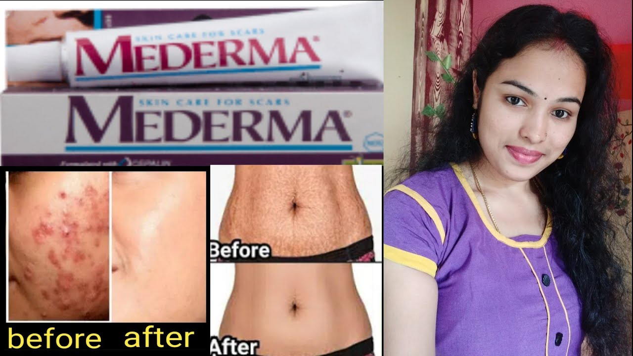 Mederma Cream Full Information How To Remove Surgery Scars Cut