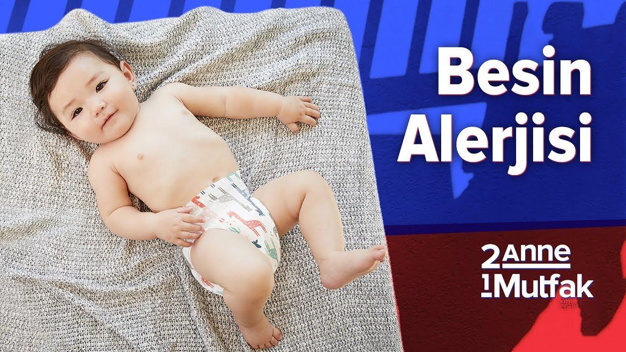 Bebeklerde Muz Alerjisi Belirtileri Ve Tedavisi