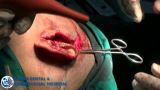 Multiple Facia-Jaw and Skull Fracture Correction - Dr. SM Balaji