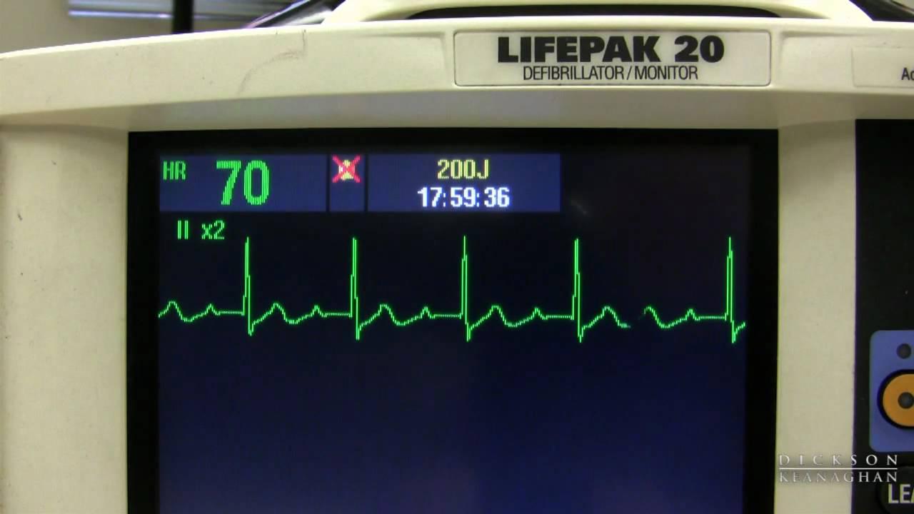 EKG Training: Watching and Interpreting the Defibrillator Monitor ...