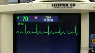 EKG Training: Watching and Interpreting the Defibrillator Monitor(Nursing educator Michele Kunz discusses the most common ekg's as they appear on the defibrillator monitor. The viewer will get a close-up look at each ekg as ..., 2009-07-29T16:40:32.000Z)