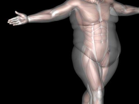 Лечение ожирения. Современная концепция