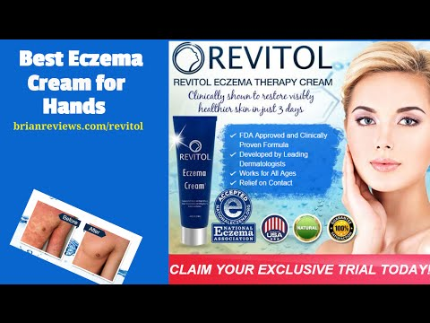 Best Eczema Cream for Hands [AMAZING] Eczema Remedy