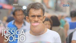 Kapuso Mo, Jessica Soho: Ngipin na binunot ng kinakalawang na pliers, namaga?