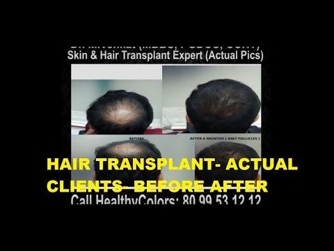 Healthy Colors Hair Transplantation- Actual Clients Pics. Treatment done by Dr. M. Venkatesh