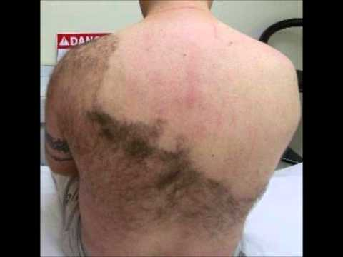 Hairy back pic