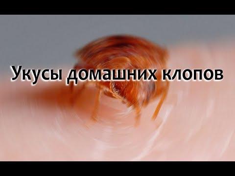 Укусы домашних клопов на человеке, лечение